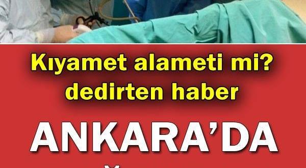Dünyada 200 binde bir görülüyor… Ankara'da doğdular